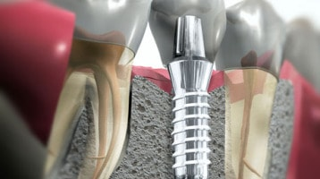 implant crown .